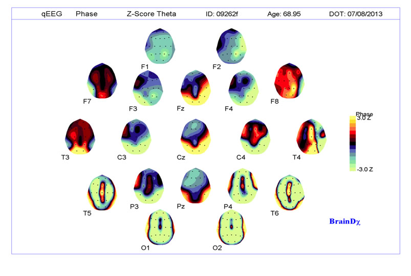 Measures of Cortical Connectivity 2