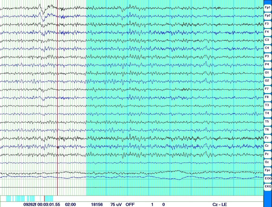 Sample QEEG