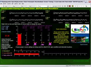 EEG Screenshot-2