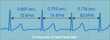 Heart Rate variability is a measure of beat-to-beat changes in heart rate.