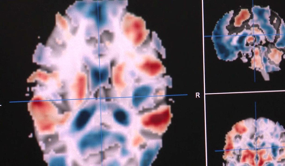 An example of brain activation from the Neurovault database. Red areas are activated by a particular task, blue areas are deactivated.