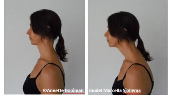 Figure 1. Head-erect versus head-forward position.